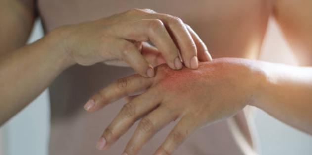 貨幣状湿疹・自家感作性皮膚炎の治し方