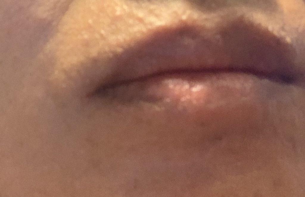 口囲皮膚炎:一週間のジュース断食(ファスティング)をした結果